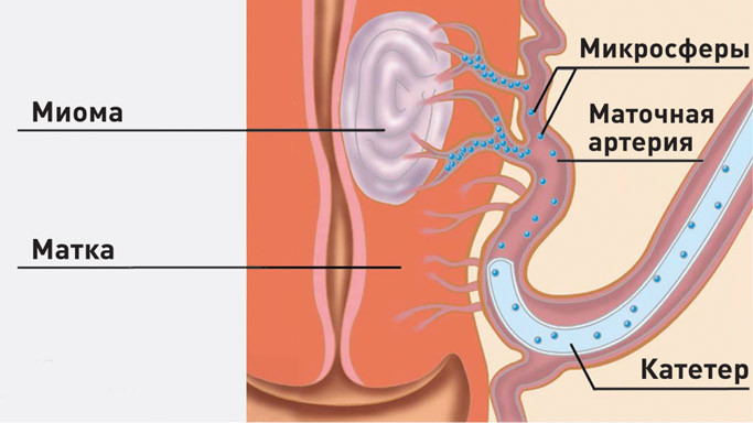 ЭМА относится к безоперационным методам лечения патологии матки и миомы