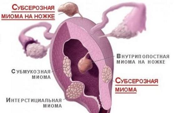 Вид Субсерозной миомы с узлами