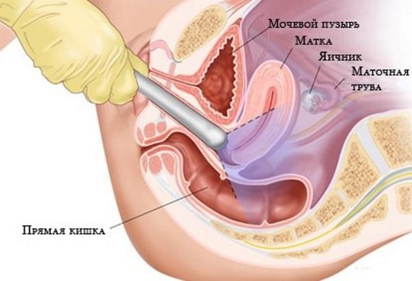 Лазерный дриллинг яичников применяется при операциях на кисту яичников