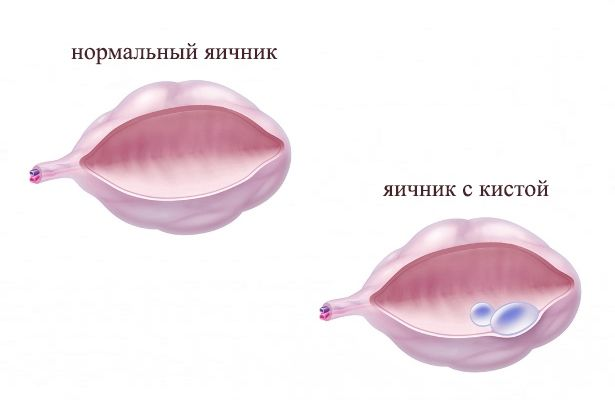 Фото дермоидной кисты
