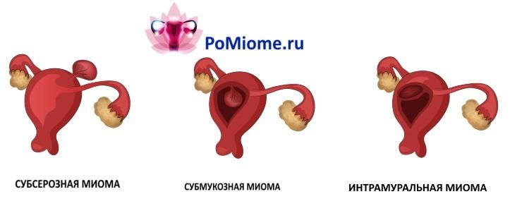 Классификация миомы по расположению миоматозного узла