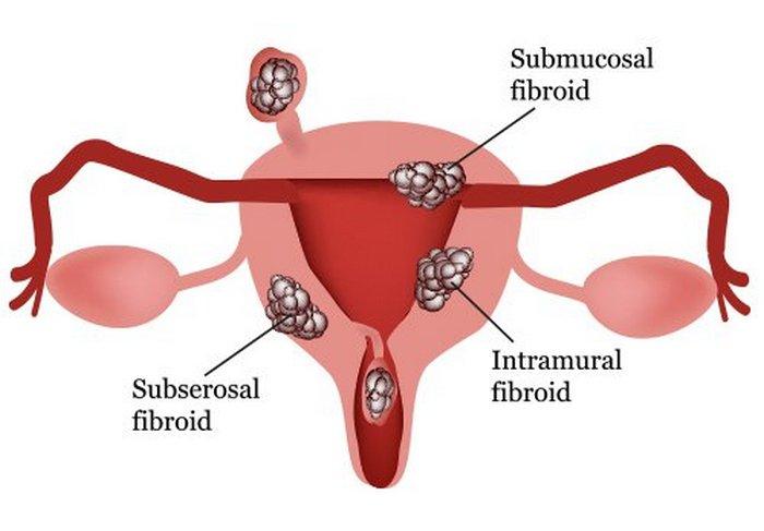 Как вовремя определить и не пропустить фибромиому матки?