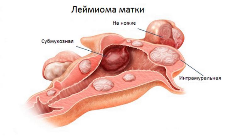 Виды и классификация лейомиом матки