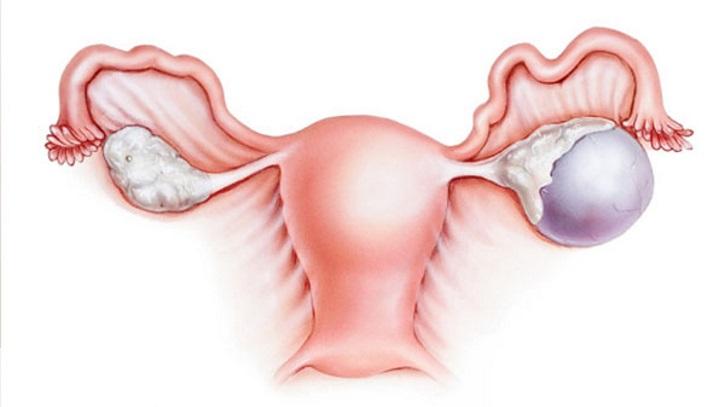 Киста яичника в менопаузе стоит ли удалять