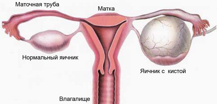 При кисте яичника какие бывают боли