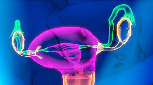 Киста яичника в пременопаузе и постменопаузе лечение без операции