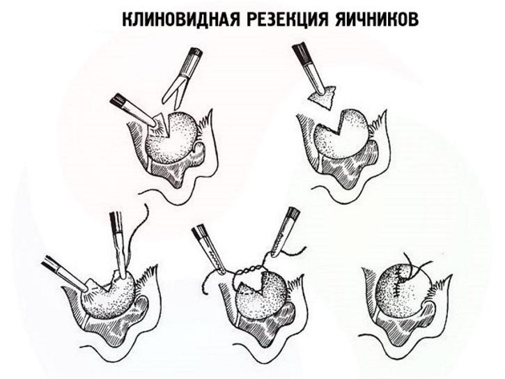 Клиновидная резекция кисты яичников