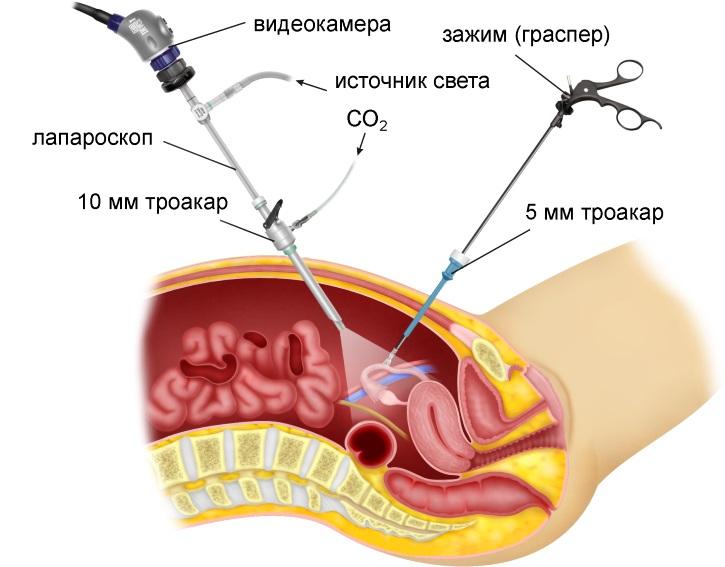 Лапараскопия при поликистозе яичников
