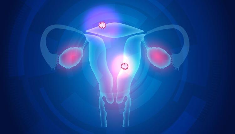 Размеры миомы для операции