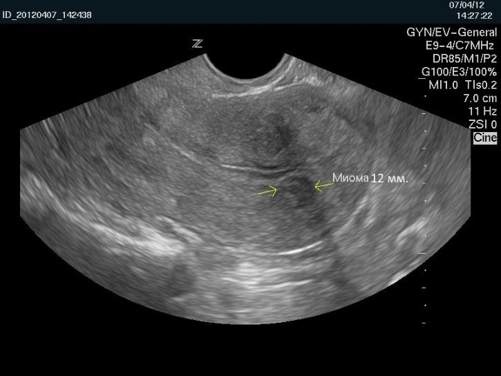 Миома матки 12 недель на Узи исследуется врачами при лейомиоме