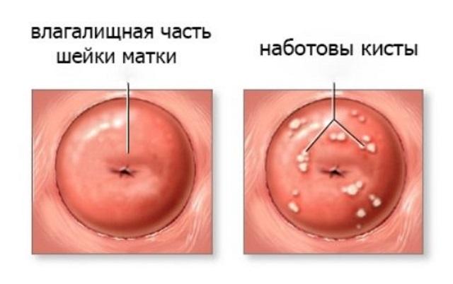 Наботовы кисты - вид кист на шейке матки