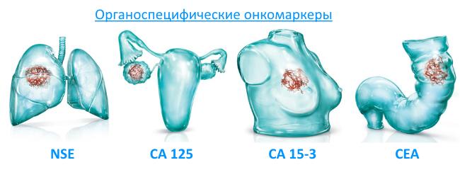 Онкомаркеры назначают при диагностике кисты яичника