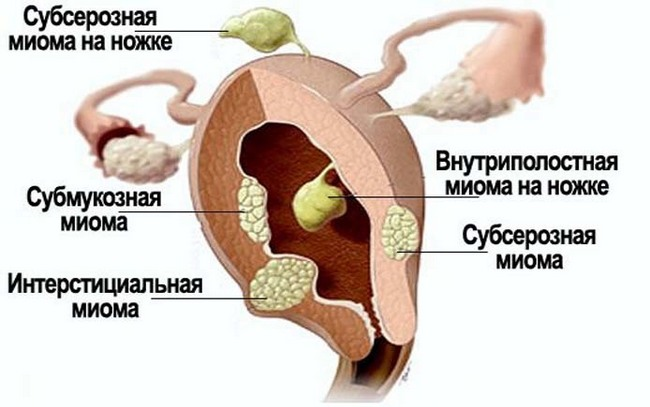Субсерозный миоматозный узел