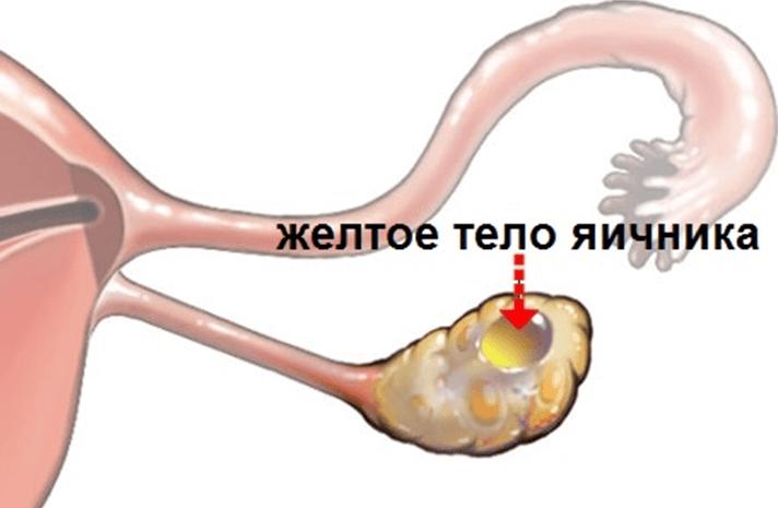 Киста желтого тела правого яичника