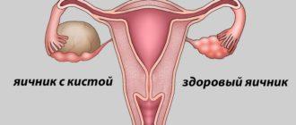 Эндометриоидная киста яичника