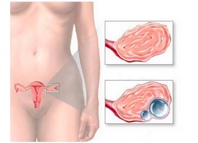 симптоматика эндометриоидной кисты