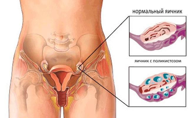 См бесплатно лечение кисты яичников народными средствами