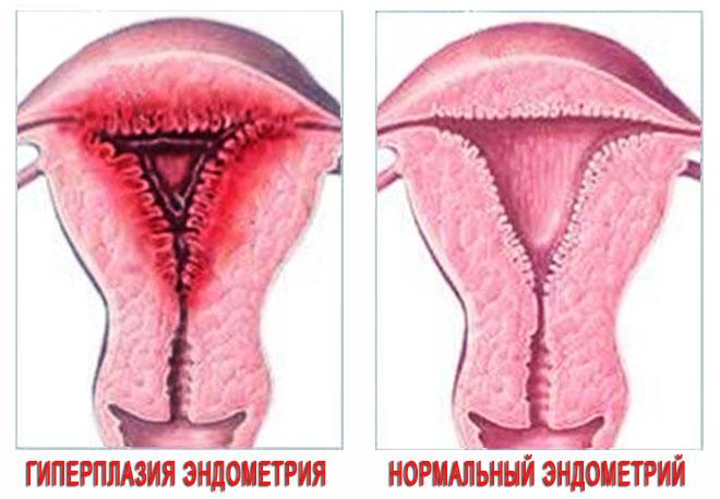 Гиперплазия эндометрия и миома матки