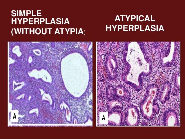 Атипия может перерождаться в рак