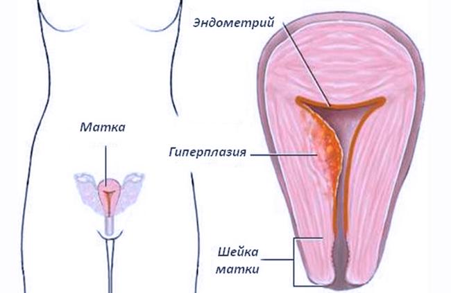 Гипоплазия эндометрия задержка месячных
