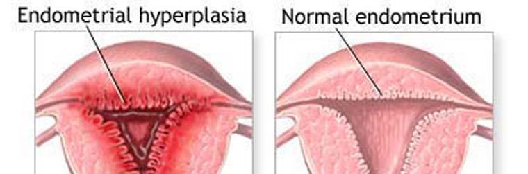 Гиперплазия эндометрия и норколут