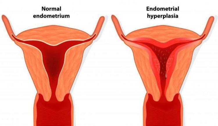 Гиперплазия эндометрия в менопаузе