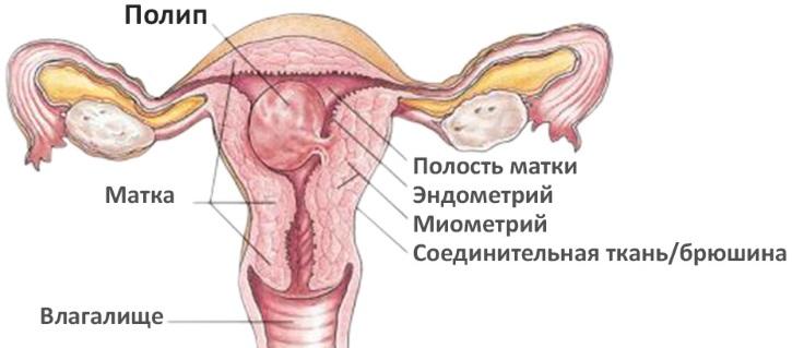 Кто беременел при тонком эндометрии