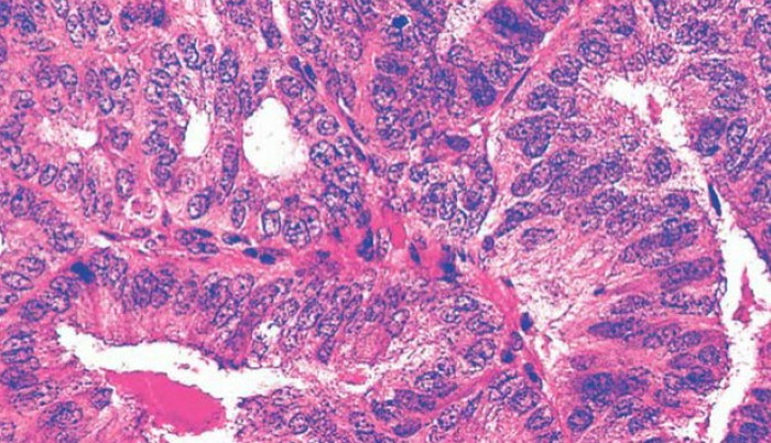 сложная атипическая гиперплазия