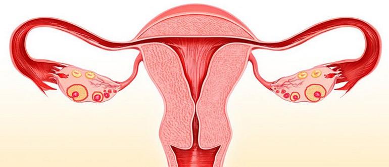 удаление матки при гиперплазии