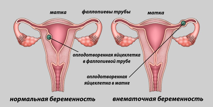 Внематочная беременность при тонком эндометрии