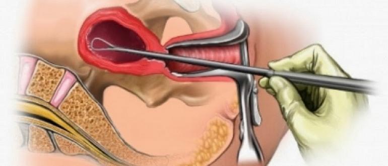 выскабливание эндометрия