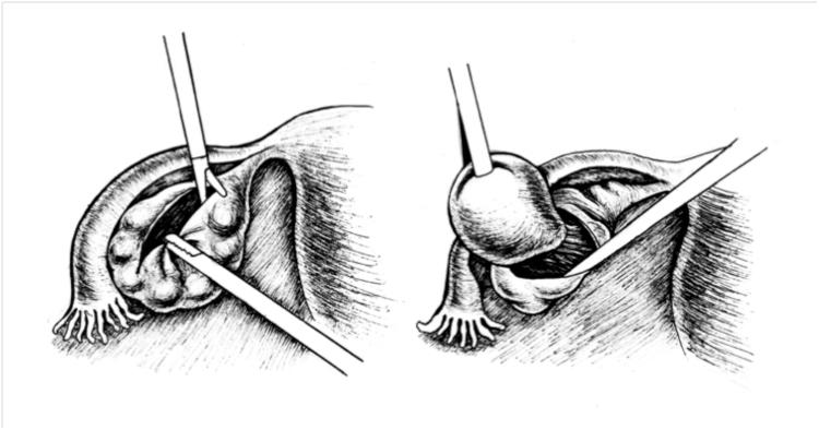 Цистэктомия яичника