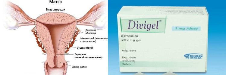 Дивигель при наращивании эндометрия