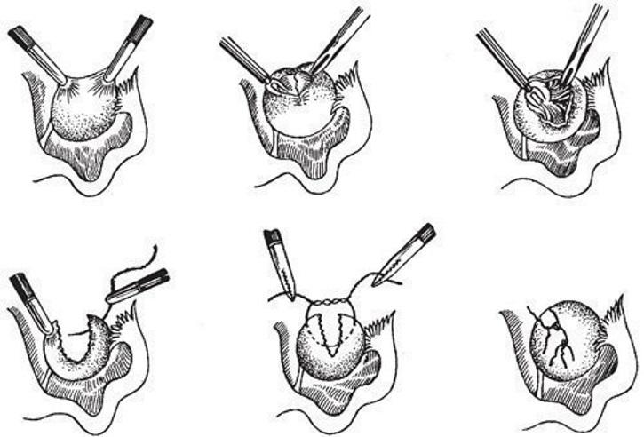 Этапы цистэктомии яичников