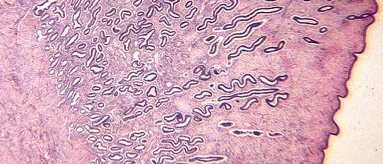 микроскопия эндометрия в фазе пролиферации