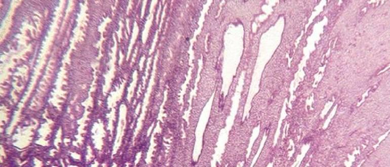микроскопия эндометрия в фазе секреции_1
