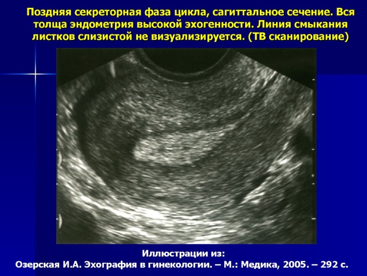 Эндометрий в секреторную фазу