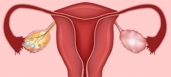 Киста левого яичника: симптомы и лечение женщины