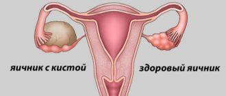 киста яичника симптомы