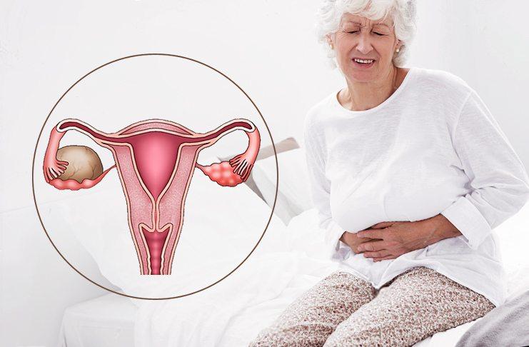Диагностика эндометриоза при климаксе