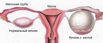 серозная киста яичника