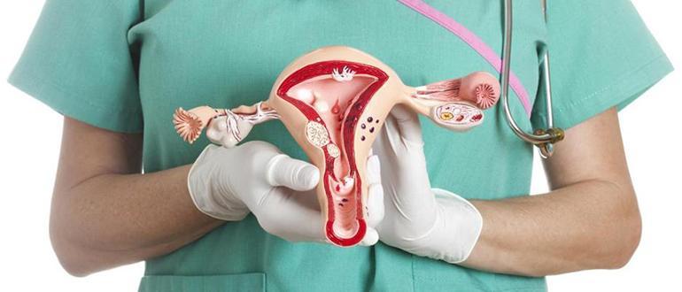 брюшинный эндометриоз