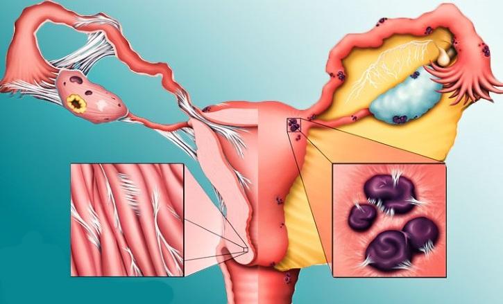 Отличие эндометрита от эндометриоза