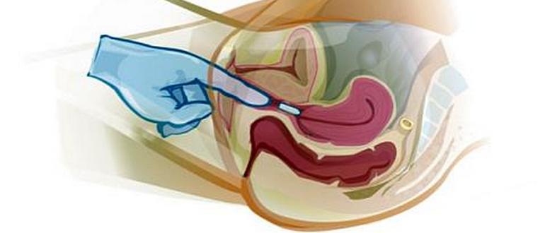 как вводить вагинальные свечи при эндометриозе