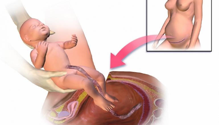 кесарево сечение эндометриоз