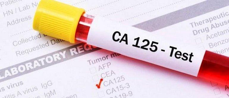 CA-125 при эндометриозе