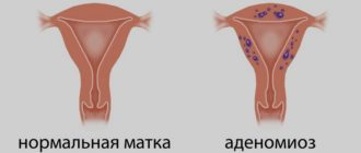 аденомиоз и эндометриоз в чем отличие