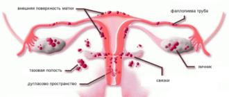 анализы при эндометриозе