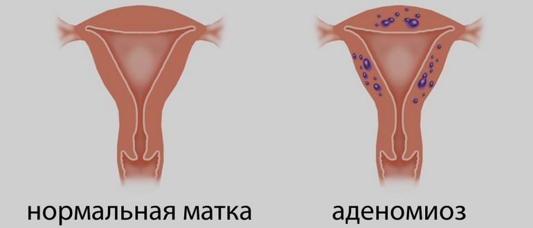 лечение аденомиоза дюфастоном