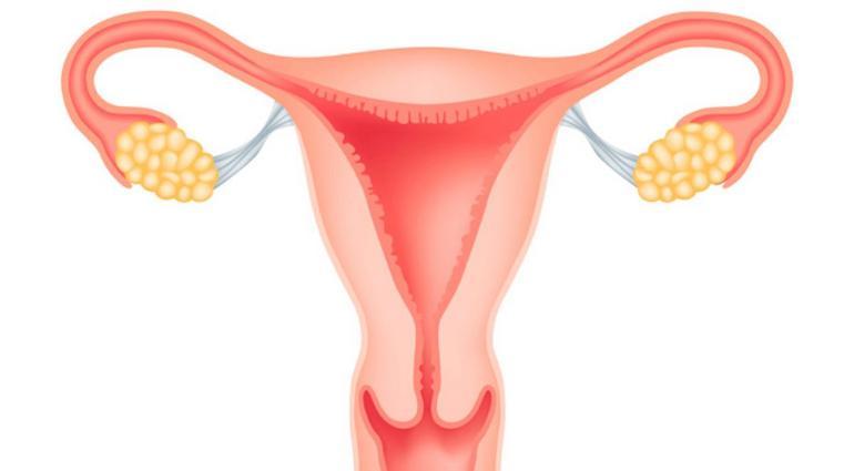 эндометриоз 1 степени